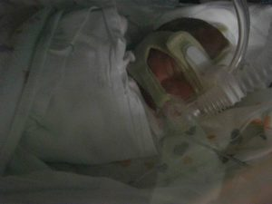prematurità