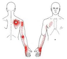 Trigger Point: cause e sintomi principali.